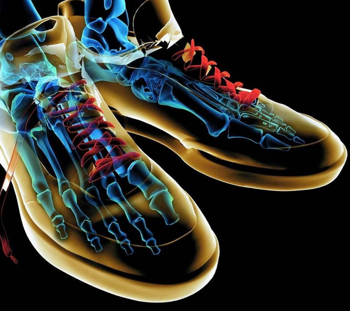 X Ray Shoes