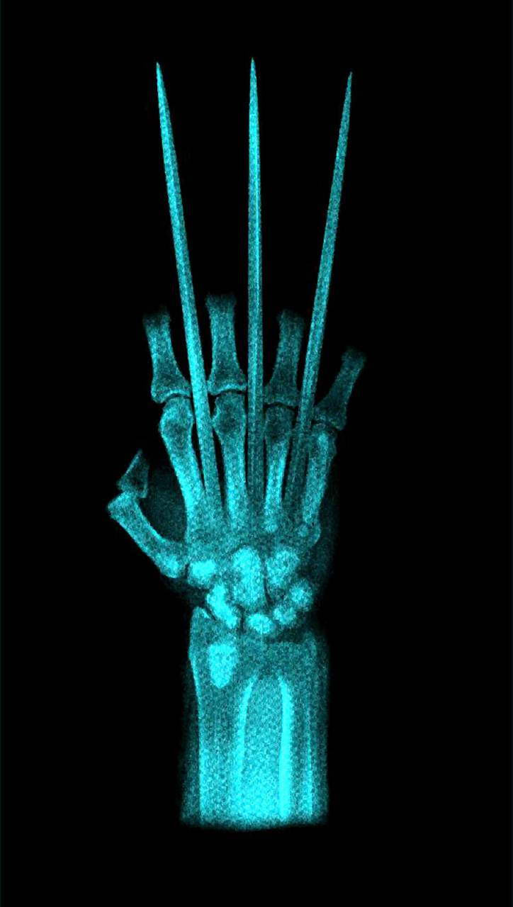 Wolverine Claw X-Ray